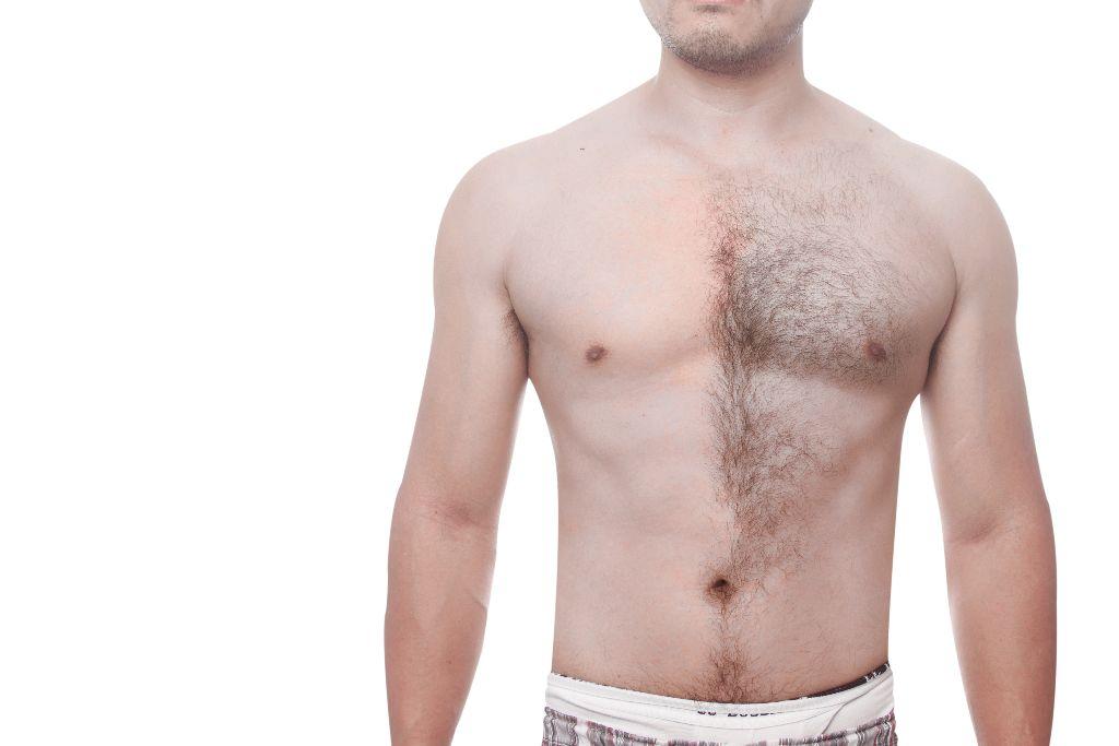 Rug of borst ontharen met LHE